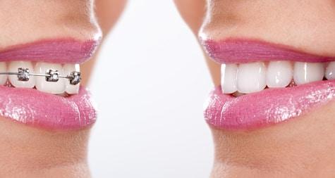 Curare una maleocclusione dentale: ecco a cosa serve l'ortodonzia